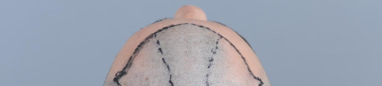 FUE Haarverpflanzung Türkei