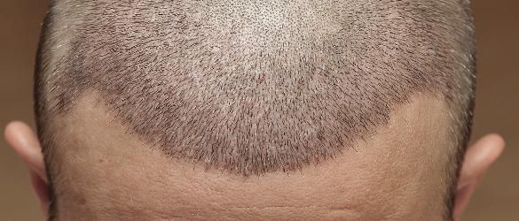Ergebnis 6 Tage nach der Haartransplantation