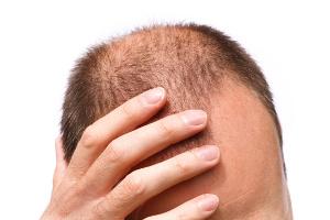 Vorteile der FUE Haarverpflanzung