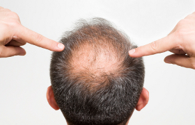 Minoxidil bei Haarausfall