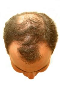 Haarausfall Ursachen