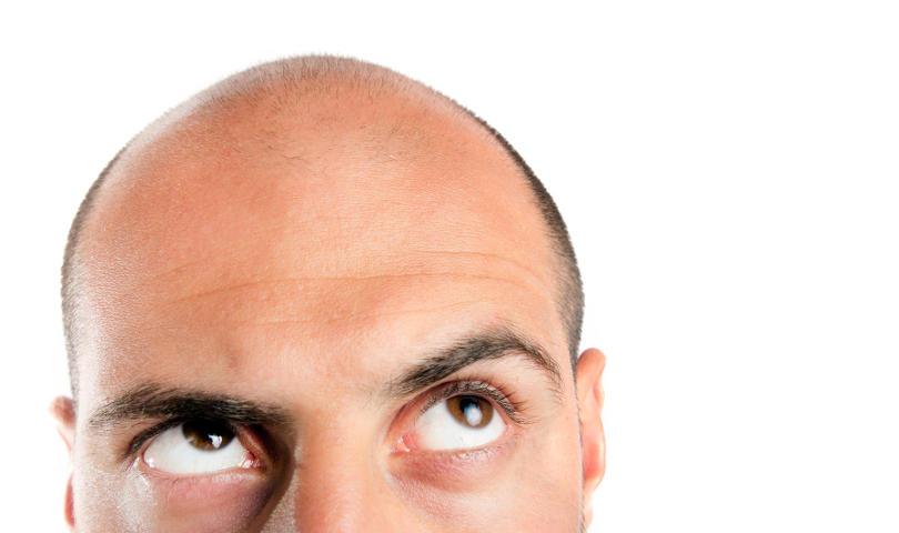 Haartransplantation Kosten Geheimratsecken