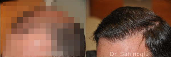 Haarlinie bei Haartransplantation