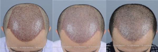 Haartransplantation Post OP Verlauf