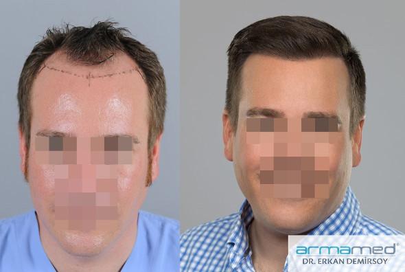 Haare implantieren stirn