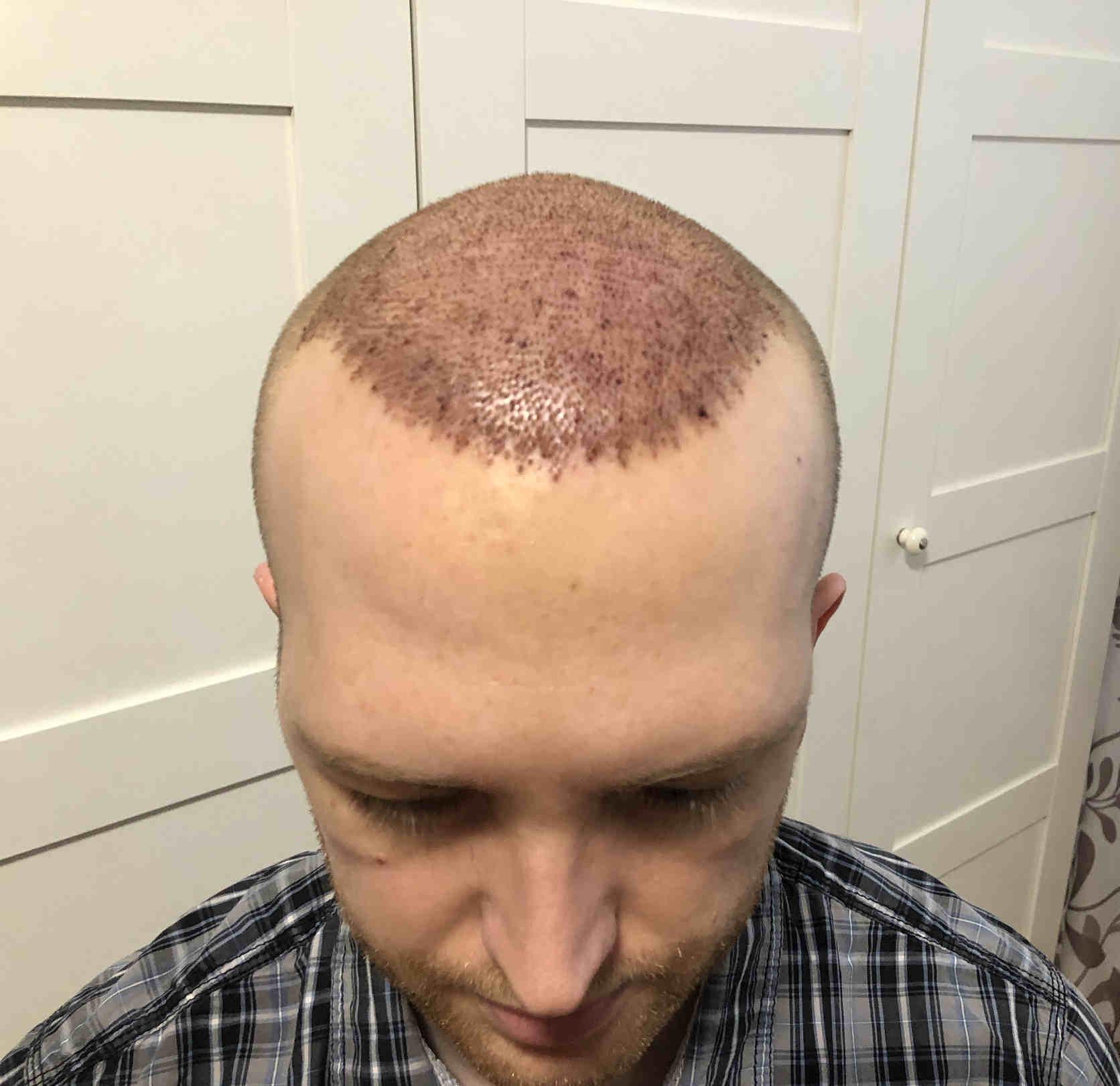 1 Tag nach Haartransplantation