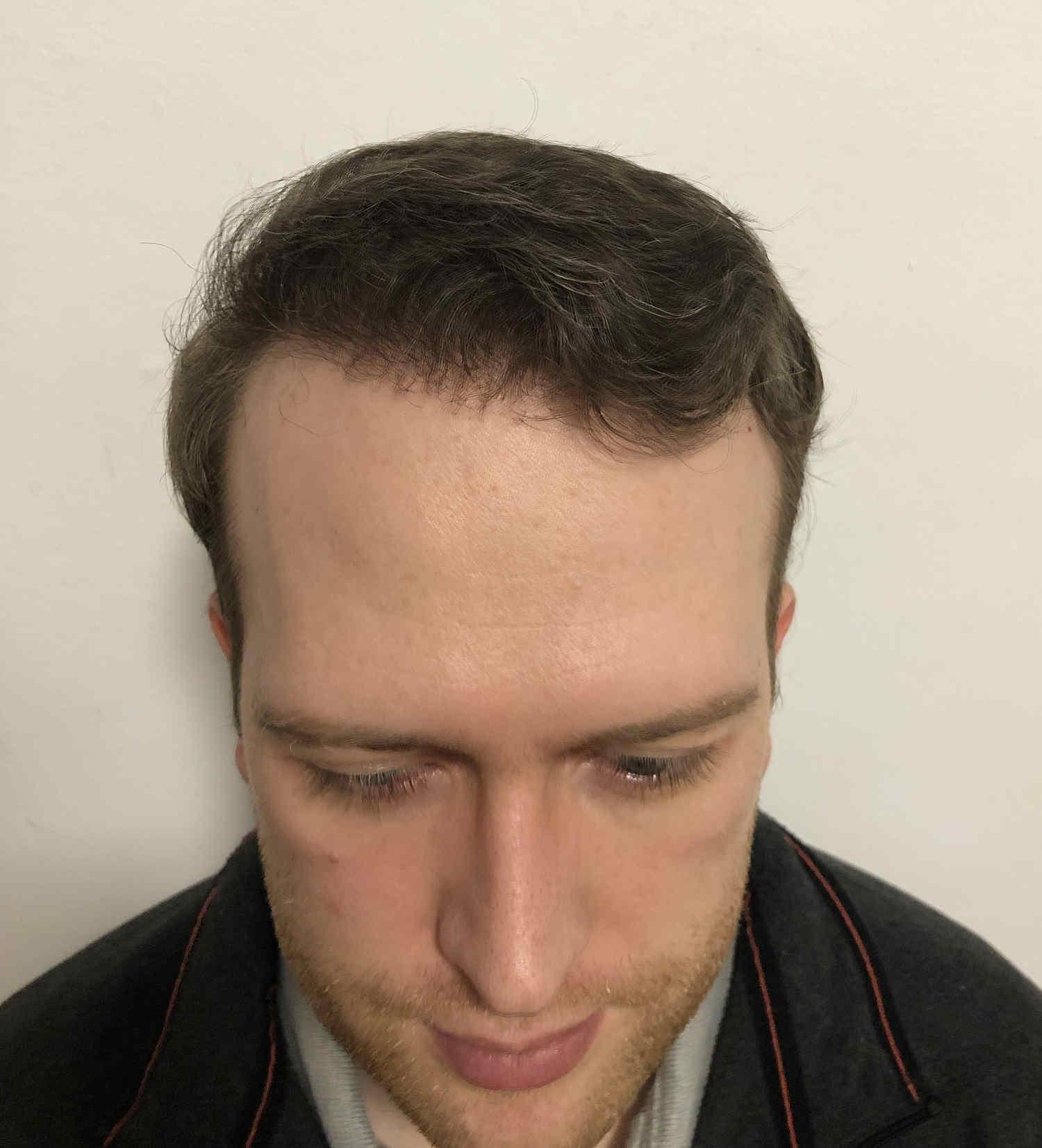 12 Monate nach Haartransplantation