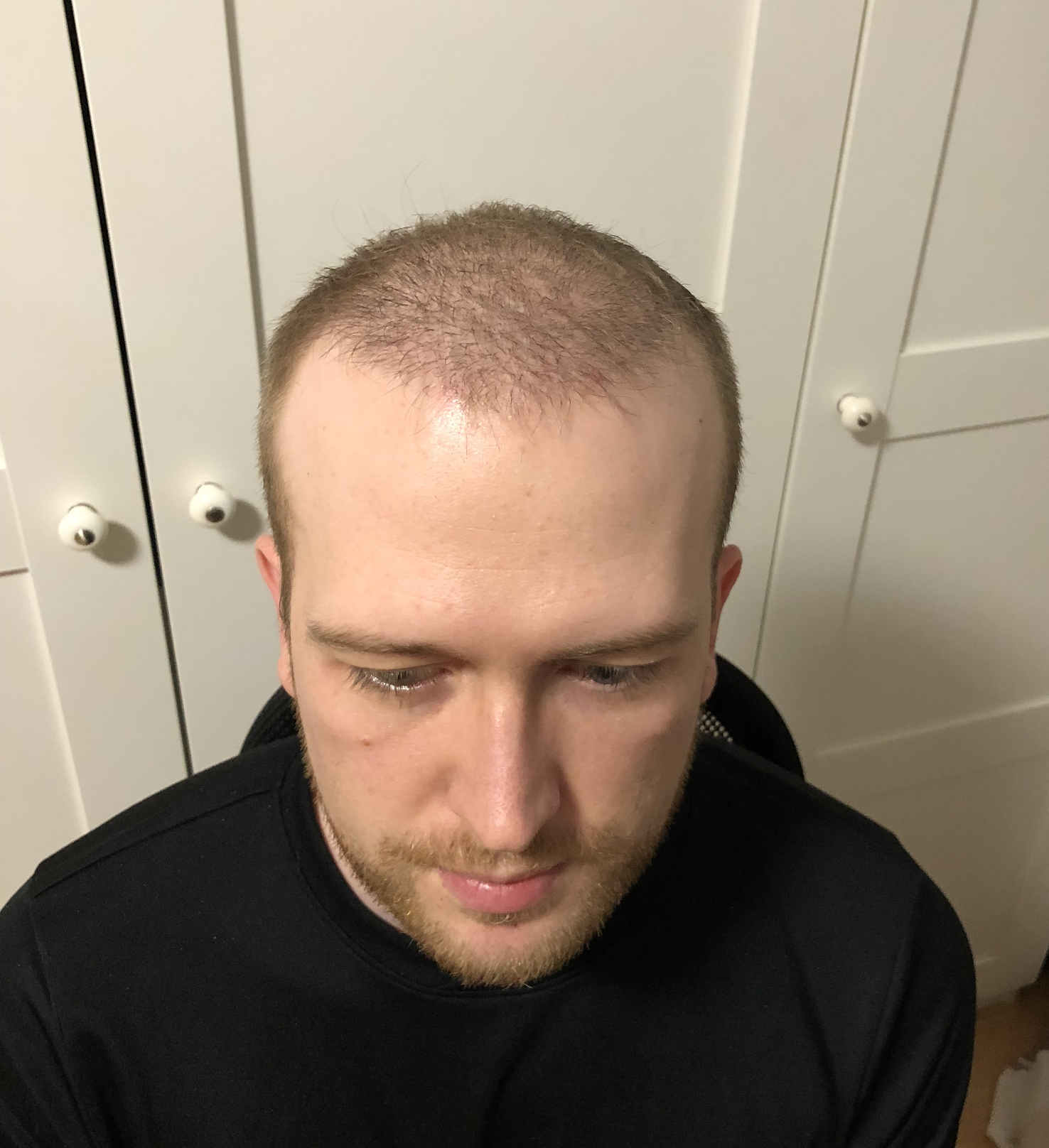 3 Monate nach Haartransplantation