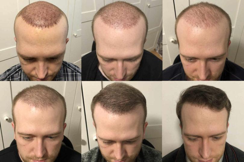 Wachstum nach Haartransplantation