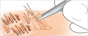 Methoden der Haartransplantation
