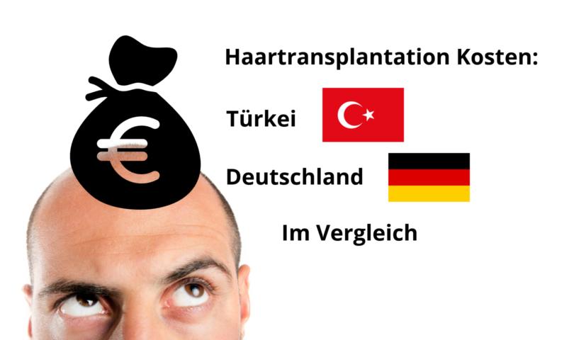 Haartransplantation Kosten: Türkei und Deutschland im Vergleich